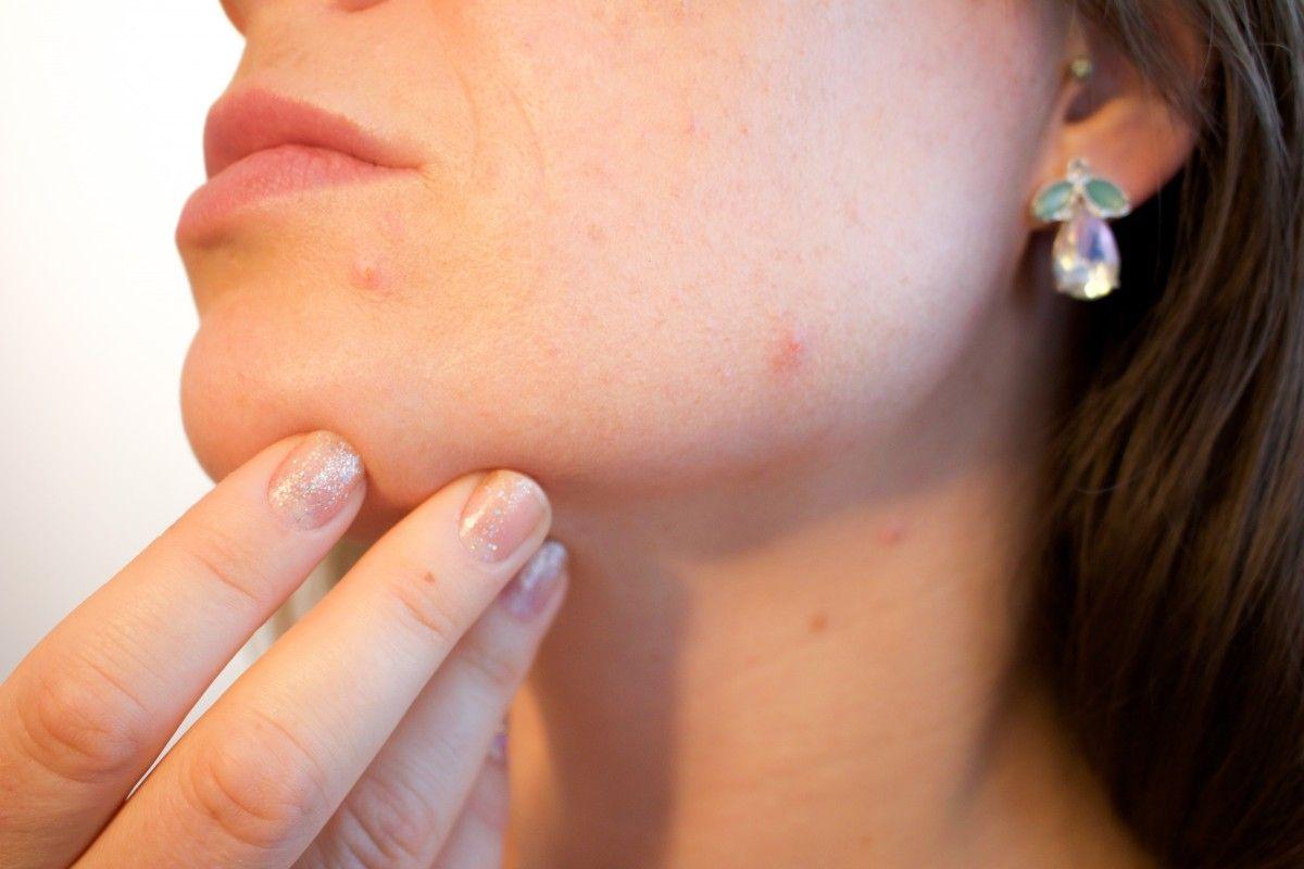 Cabinet dermatologic papiloame
